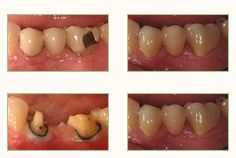 Porcelain Fixed Dentures