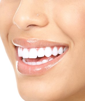 Cosmetic Dentistry in Bel Air MD