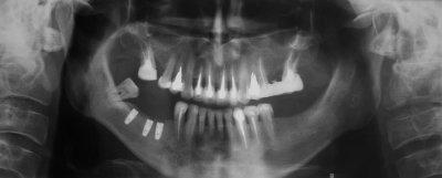 Dental Implants Near Bel Air