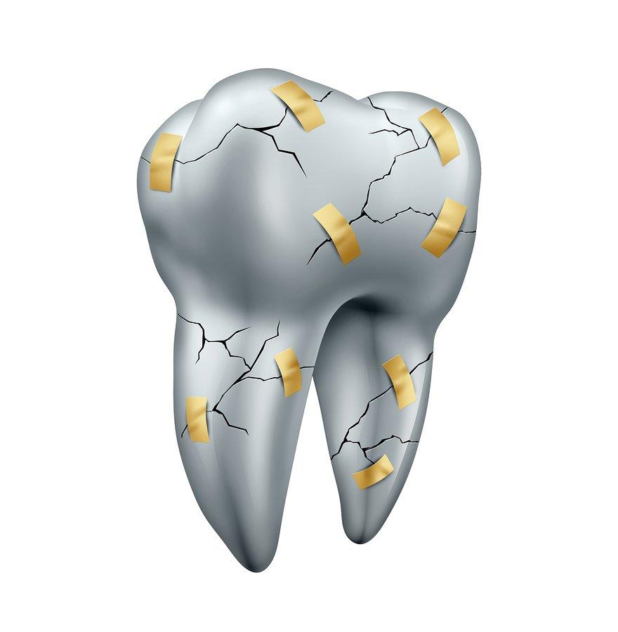 Emergency Dentist in Bel Air