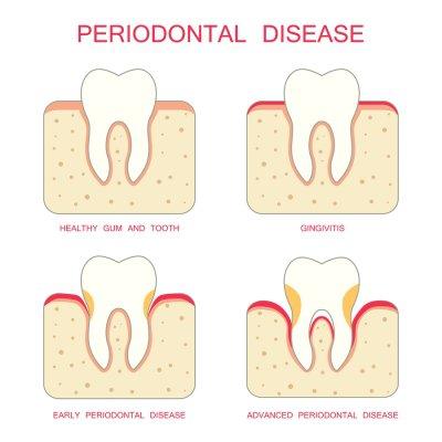 Gum Disease in Bel Air