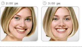 Teeth Whitening in Bel Air