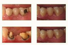 Bel Air Dental Crowns