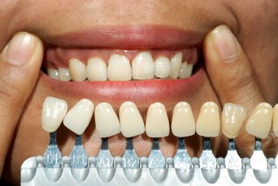 Dental Implants In Bel Air, MD