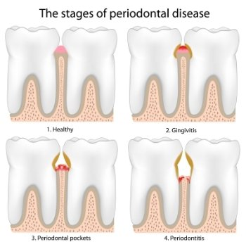 Periodontal Disease Process