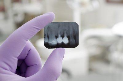 Teeth X-Rays